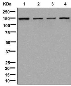 Western blot - Anti-IKAP/p150 antibody [EPR13113] (ab179437)