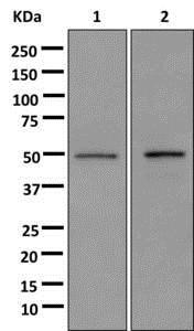 Western blot - Anti-HNRPH2/HNRNPH2 antibody [EPR12170(B)] (ab179439)
