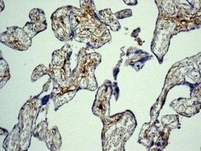 Immunohistochemistry (Formalin/PFA-fixed paraffin-embedded sections) - Anti-Factor XIIIa antibody [EPR10360] (ab179444)