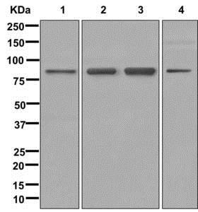 Western blot - Anti-CXorf23 antibody [EPR12942] (ab179446)