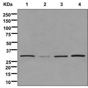 Western blot - Anti-TSFM antibody [EPR12040] (ab179449)