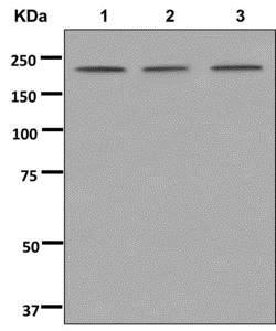 Western blot - Anti-ZNFX1 antibody [EPR12330] (ab179452)