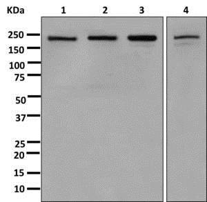 Western blot - Anti-SMCHD1 antibody [EPR12340-29] (ab179456)