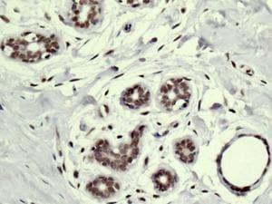 Immunohistochemistry (Formalin/PFA-fixed paraffin-embedded sections) - Anti-SMCHD1 antibody [EPR12340-29] (ab179456)