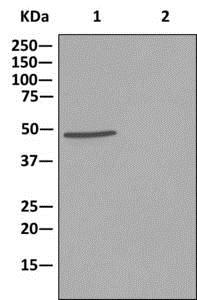 Immunoprecipitation - Anti-NCF1/p47-phox antibody [EPR13134] (ab179457)