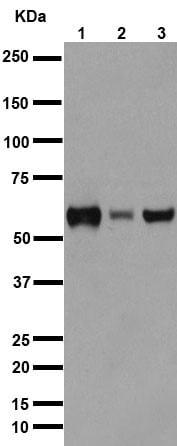 Western blot - Anti-AKT1 + AKT2 + AKT3 antibody [EPR16798] (ab179463)