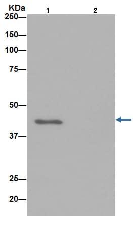 Immunoprecipitation - Anti-Actin antibody [EPR16769] (ab179467)