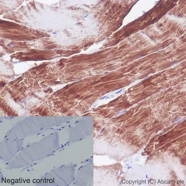 Immunohistochemistry (Formalin/PFA-fixed paraffin-embedded sections) - Anti-Actin antibody [EPR16769] (ab179467)