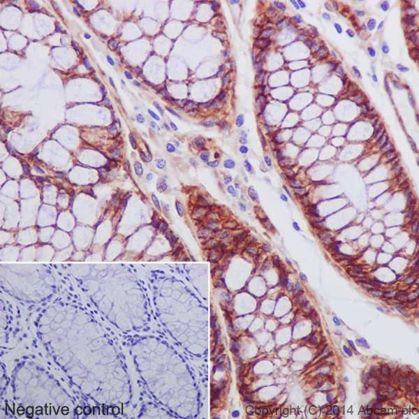 Immunohistochemistry (Formalin/PFA-fixed paraffin-embedded sections) - Anti-Integrin beta 1 antibody [EPR16895] (ab179471)