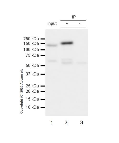 Immunoprecipitation - Anti-Integrin beta 3 antibody [ERP17507] (ab179473)