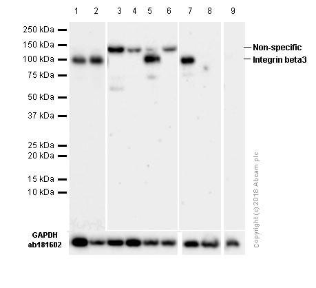 Western blot - Anti-Integrin beta 3 antibody [ERP17507] (ab179473)