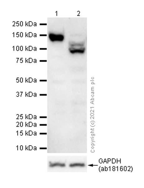 Western blot - Anti-Integrin alpha V antibody [EPR16800] (ab179475)