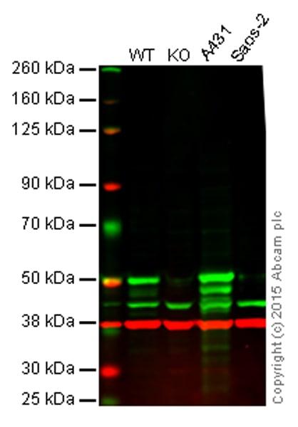 Western blot - Anti-p53 antibody [EPR17343] (ab179477)