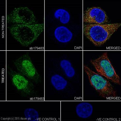 免疫细胞化学/免疫荧光抗HIF-1α抗体[EPR16897 ](AB17983)