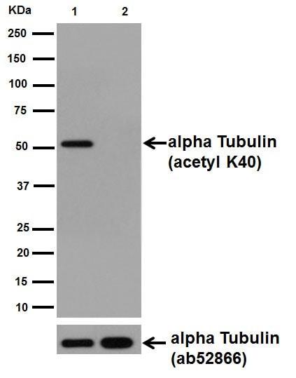 Western blot - Anti-alpha Tubulin (acetyl K40) antibody [EPR16772] (ab179484)