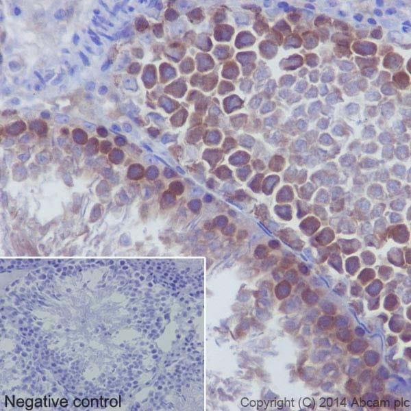 Immunohistochemistry (Formalin/PFA-fixed paraffin-embedded sections) - Anti-gamma Tubulin antibody [EPR16793] (ab179503)