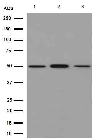 Western blot - Anti-beta IV Tubulin antibody [EPR16775] (ab179504)