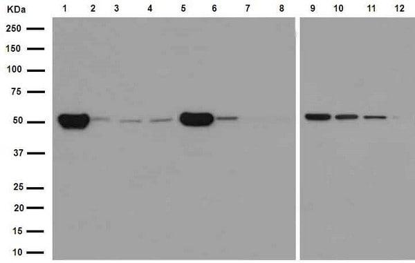 Western blot - Anti-beta IV Tubulin antibody [EPR16775] (ab179504)