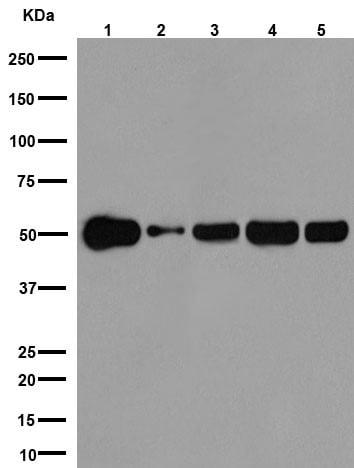 Western blot - Anti-beta I Tubulin antibody [EPR16778] (ab179511)