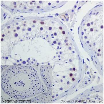 Immunohistochemistry (Formalin/PFA-fixed paraffin-embedded sections) - Anti-Caspase-2L antibody [EPR16790] (ab179519)