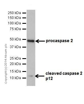 Western blot - Anti-Caspase-2L antibody [EPR16790] (ab179519)