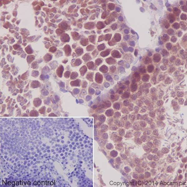 Immunohistochemistry (Formalin/PFA-fixed paraffin-embedded sections) - Anti-PKC antibody [EPR16794] (ab179521)