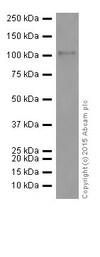 Western blot - Anti-PKC antibody [EPR16794] (ab179521)