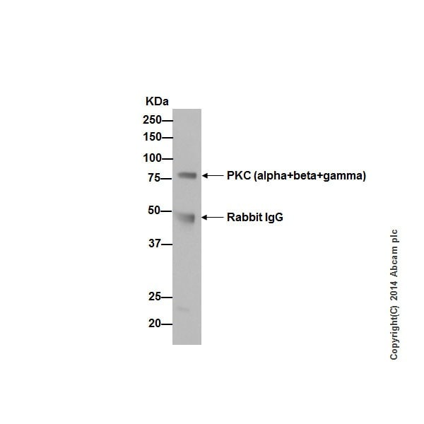 Immunoprecipitation - Anti-PKC antibody [EPR16898] (ab179522)