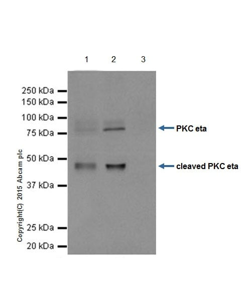 Immunoprecipitation - Anti-PKC eta antibody [EPR18513] (ab179524)