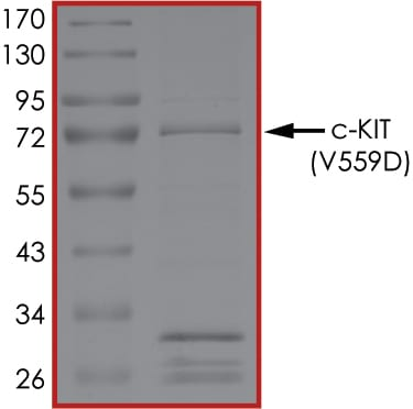 SDS-PAGE - Recombinant human c-Kit (mutated V559D) protein (ab179622)