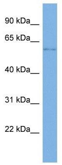 Western blot - Anti-SLC22A14 antibody - N-terminal (ab179645)