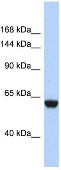 Western blot - Anti-CFHR4 antibody - N-terminal (ab179646)
