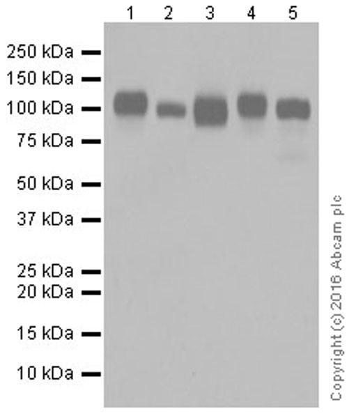 Western blot - Anti-ICAM1 antibody [EPR16608] (ab179707)