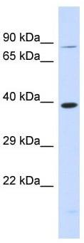 Western blot - Anti-RHBDL2 antibody - N-terminal (ab179726)