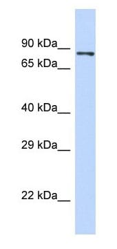 Western blot - Anti-PIEZO2 antibody - N-terminal (ab179746)