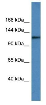 Western blot - Anti-USP6 antibody - C-terminal (ab179751)