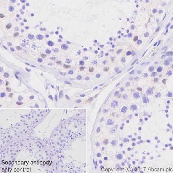 Immunohistochemistry (Formalin/PFA-fixed paraffin-embedded sections) - Anti-TFE3 antibody [EPR11591] (ab179804)