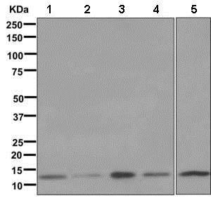 Western blot - Anti-NDUFS5 antibody [EPR12291] (ab179806)