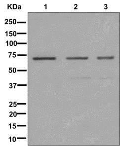 Western blot - Anti-IMP3 antibody [EPR12021-114] (ab179807)