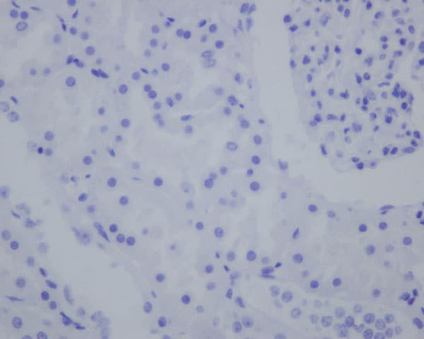 Immunohistochemistry (Formalin/PFA-fixed paraffin-embedded sections) - Anti-IMP3 antibody [EPR12021-114] (ab179807)