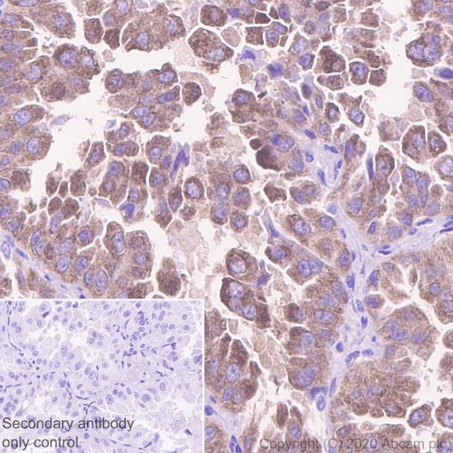 Immunohistochemistry (Formalin/PFA-fixed paraffin-embedded sections) - Anti-IMP3 antibody [EPR12021-114] (ab179807)
