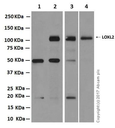 Western blot - Anti-LOXL2 antibody [EPR12733] - C-terminal (ab179810)
