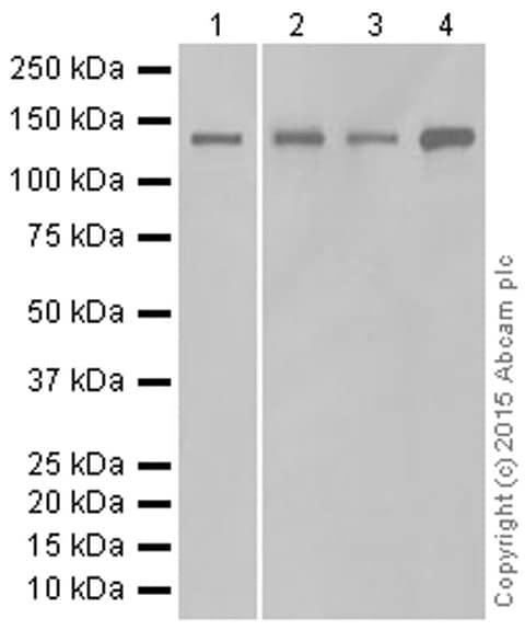 Western blot - Anti-PER2 antibody [EPR11381(2)] (ab179813)