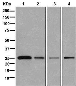 Western blot - Anti-VSTM5 antibody [EPR13131] (ab179816)