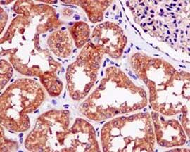 Immunohistochemistry (Formalin/PFA-fixed paraffin-embedded sections) - Anti-FBXO21 antibody [EPR13163] (ab179818)
