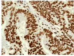 Immunohistochemistry (Formalin/PFA-fixed paraffin-embedded sections) - Anti-FAM98B antibody [EPR12872] (ab179833)