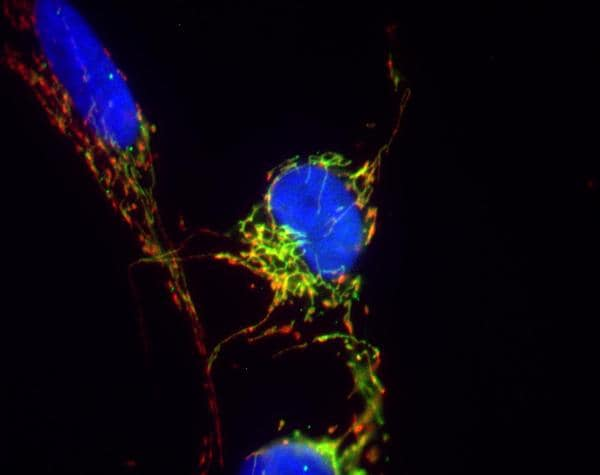 Immunocytochemistry/ Immunofluorescence - Anti-VDAC1 / Porin antibody [20B12AF2] (Alexa Fluor® 488) (ab179839)