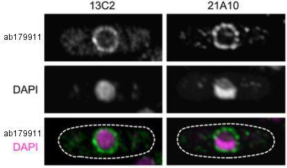 Immunocytochemistry/ Immunofluorescence - Anti-NUP98 antibody [13C2 + 21A10] - BSA and Azide free (ab179911)