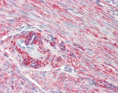 Immunohistochemistry (Formalin/PFA-fixed paraffin-embedded sections) - Anti-SRBC antibody (ab179923)