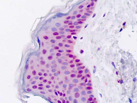 Immunohistochemistry (Formalin/PFA-fixed paraffin-embedded sections) - Anti-DIS3 antibody (ab179933)